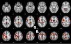 IBM et l'Université de l'Alberta publient de nouvelles données sur des algorithmes d'apprentissage automatique afin d'aider à prédire la schizophrénie
